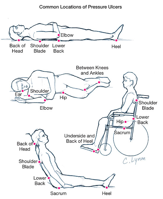 Sketches of a person in four different positions (lying on back, lying on side, in wheelchair, and sitting up in bed) with red dots and labels showing pressure areas over bony prominances where pressure ulcers are likely to develop.