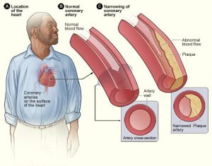 A man has coronary artery disease, and may suffer a heart attack because of medical malpractice.