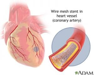 A patient gets an angioplasty for a blocked artery, and may not need a heart attack lawyer for medical malpractice.