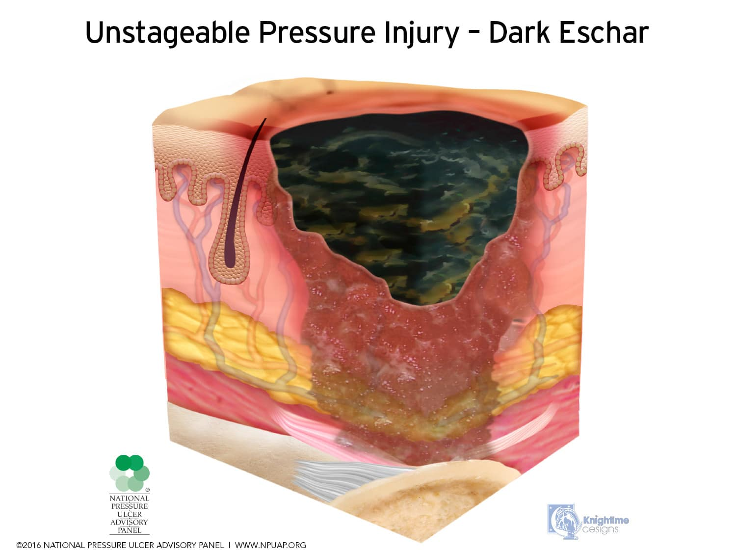 Pressure ulcers unstageable