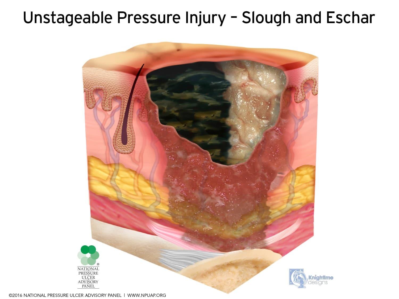 Eschar tissue